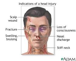 Realistic Writing: Head Injuries